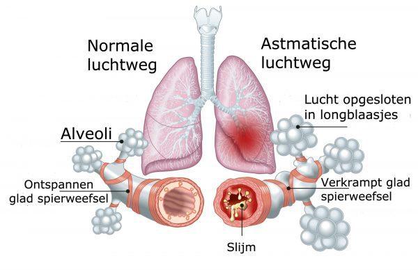 Slijm in longen