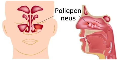 poliepen neus