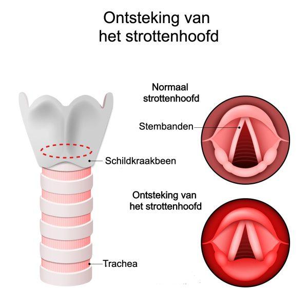 Ontsteking van het strottenhoofd